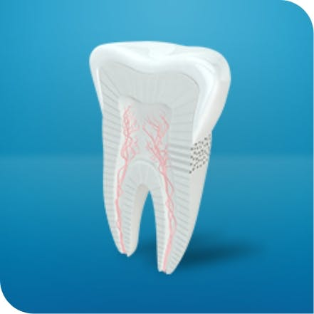 Being able to tell the difference between a cavity and tooth sensitivity