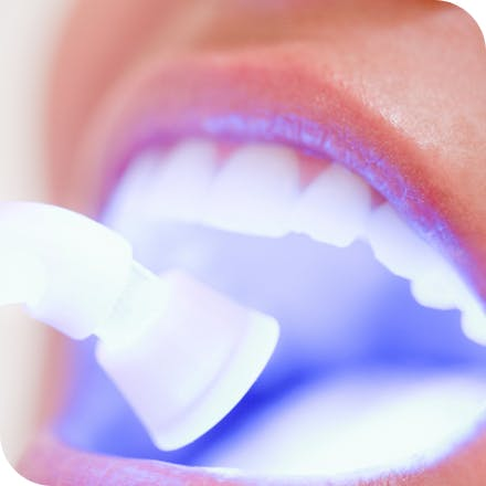 Sensitive teeth whitening
