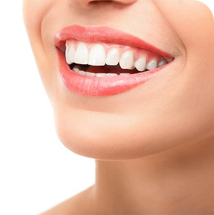 Inserting a whitening tray with sensitive teeth