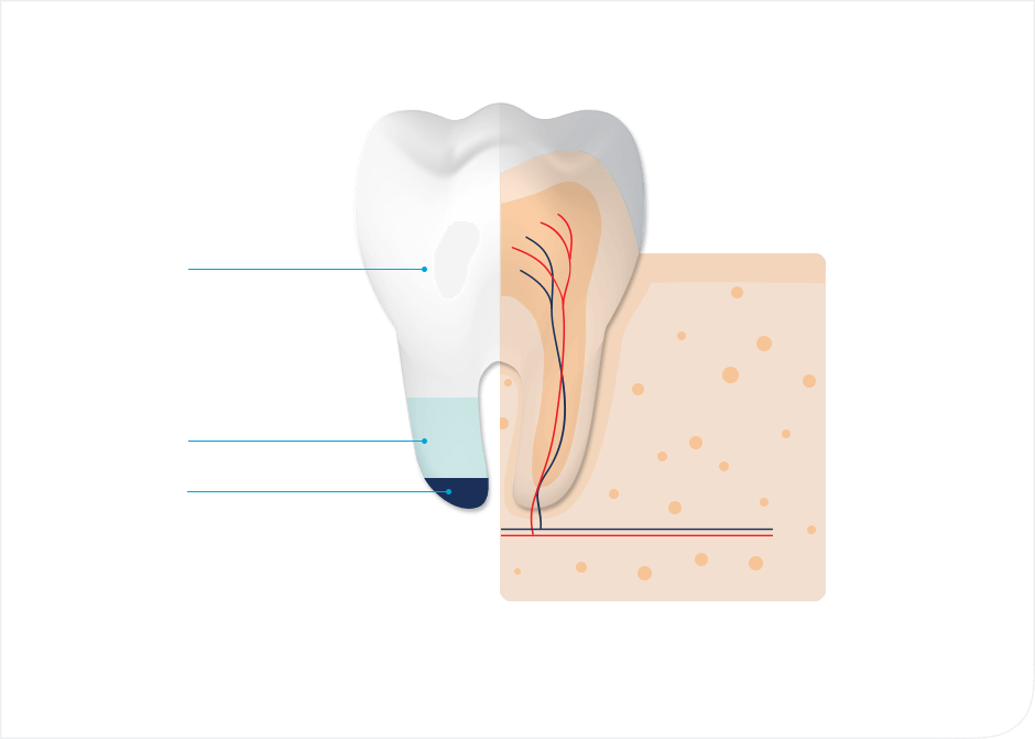 Tooth enamel explained