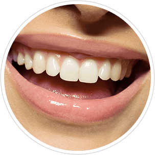 Smile of a woman with white teeth