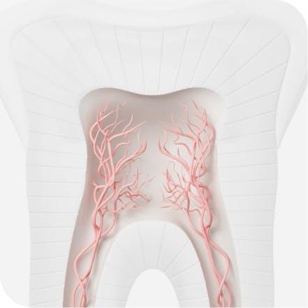 Triggered nerves in teeth