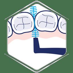 Interdental cleaning in-between teeth