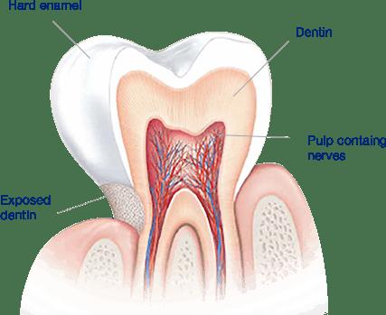 ما الذي يسبب الأسنان الحساسة