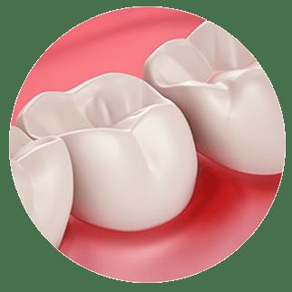 Здрави венци и чувствителност