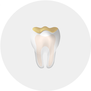 Cut away view of a tooth highlighing acid erosion