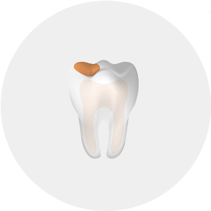 Cut away view of a tooth highlighing a cavity