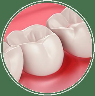 Ienten terveys ja hampaiden vihlonta