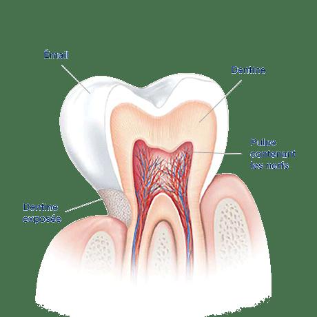 Quelles sont les causes de la sensibilité dentaire ?