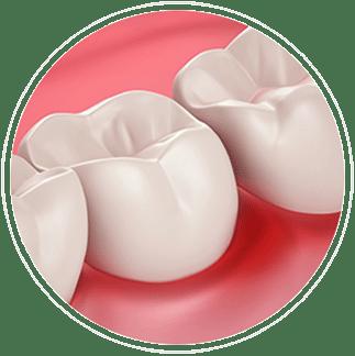 Santé des gencives et sensibilté dentaire