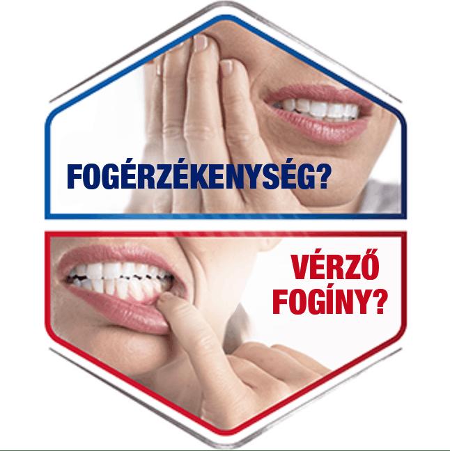 Fogérzékenység & vérző fogíny