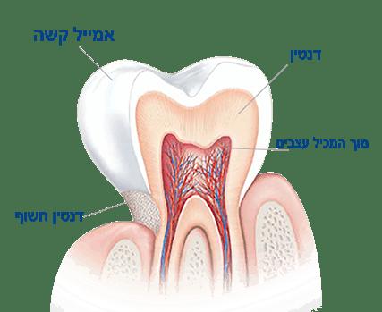 מה גורם לרגישות בשיניים?