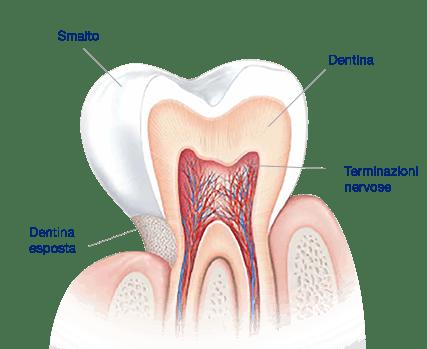 Ipersensibilità dentinale. Che cosa causa i denti sensibili?