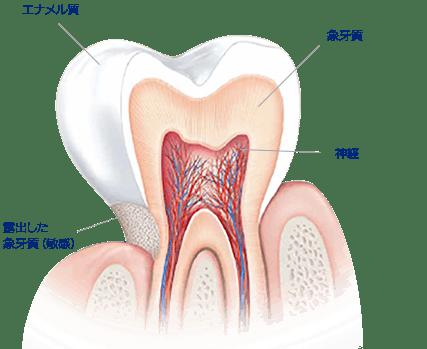 エナメル質:歯を保護している層