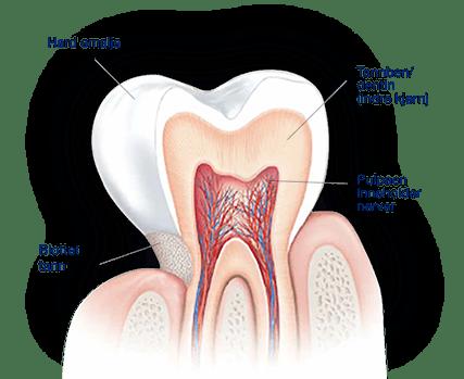 Hva forårsaker ising i tennene?
