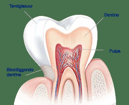 Dankzij de structuur van je tand kun je tandglazuur niet herstellen