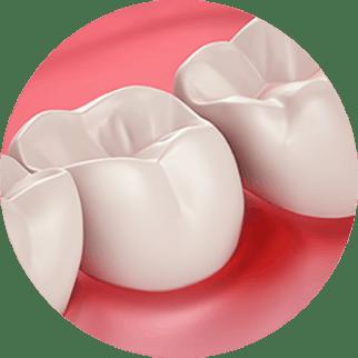 Здоровье десен и чувствительность зубов