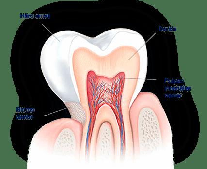 Vad orsakar ilningar i tänderna?
