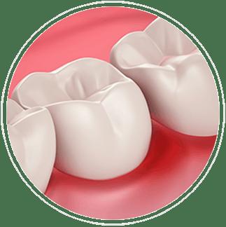 Friskt tandkött och ilningar i tänderna