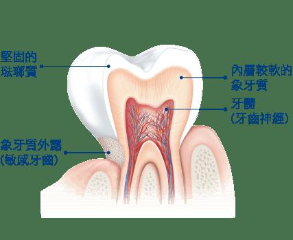 引起敏感牙齒的原因是什麼?
