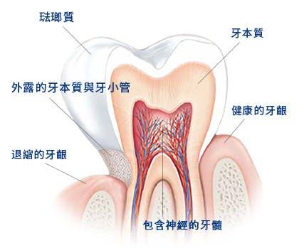 造成敏感性牙齒的原因為何?
