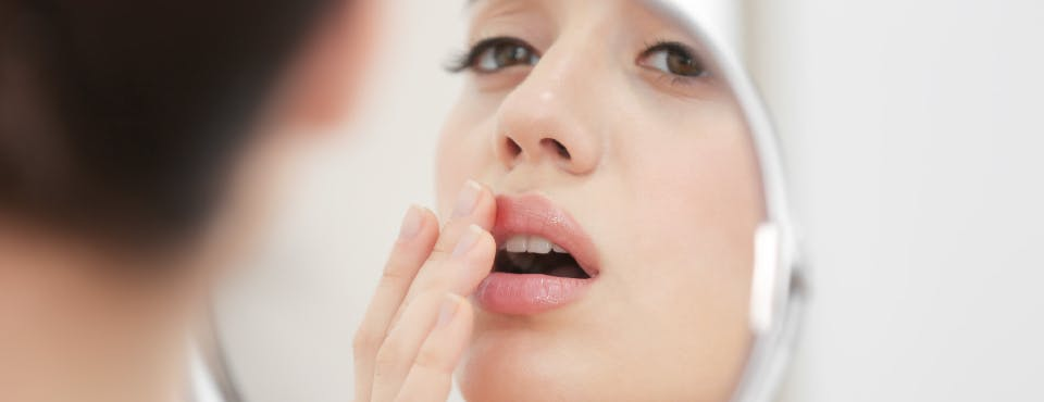 Woman with cold sore looking into mirror