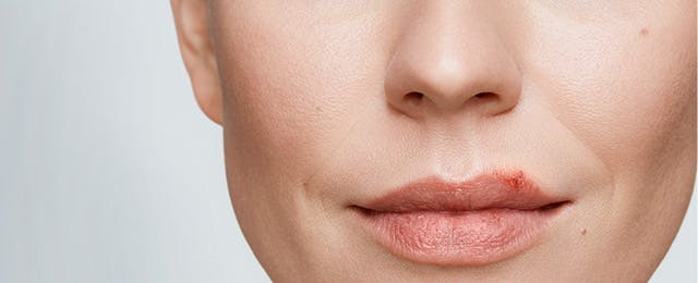 Woman With Cold Sore On Lip