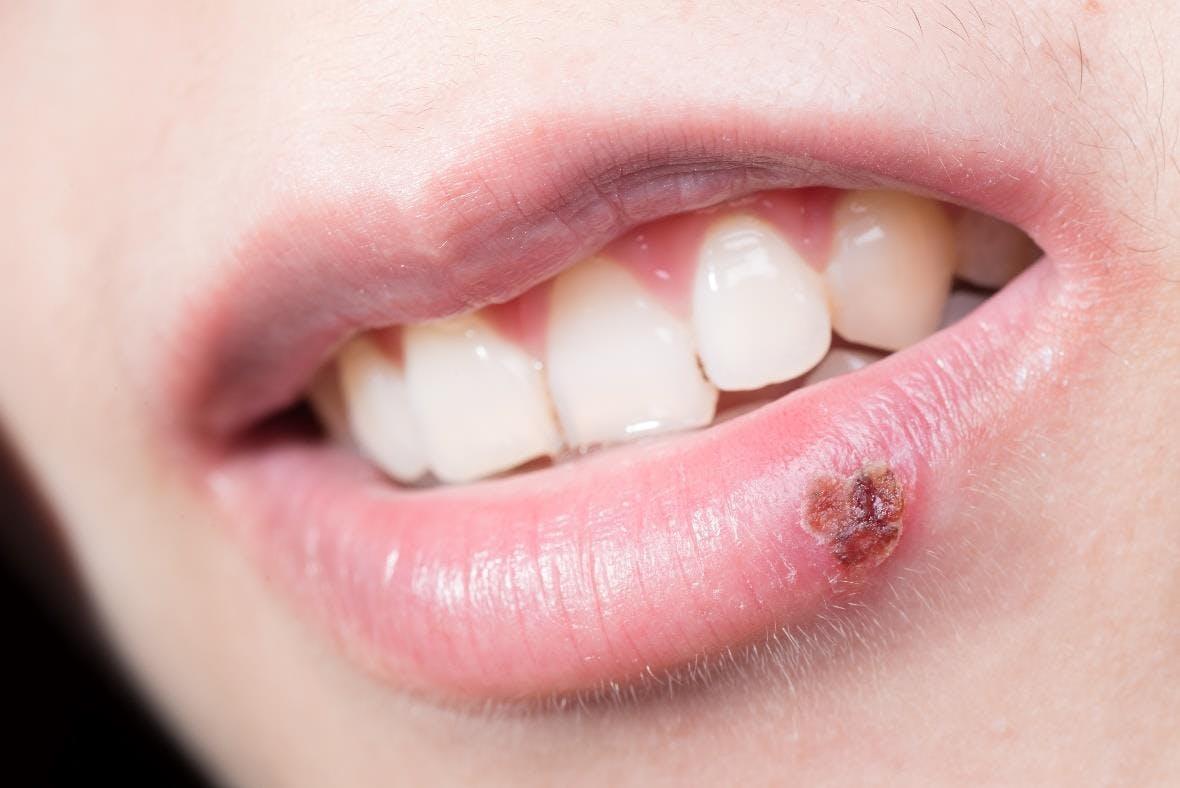 Fever blister on lower lip