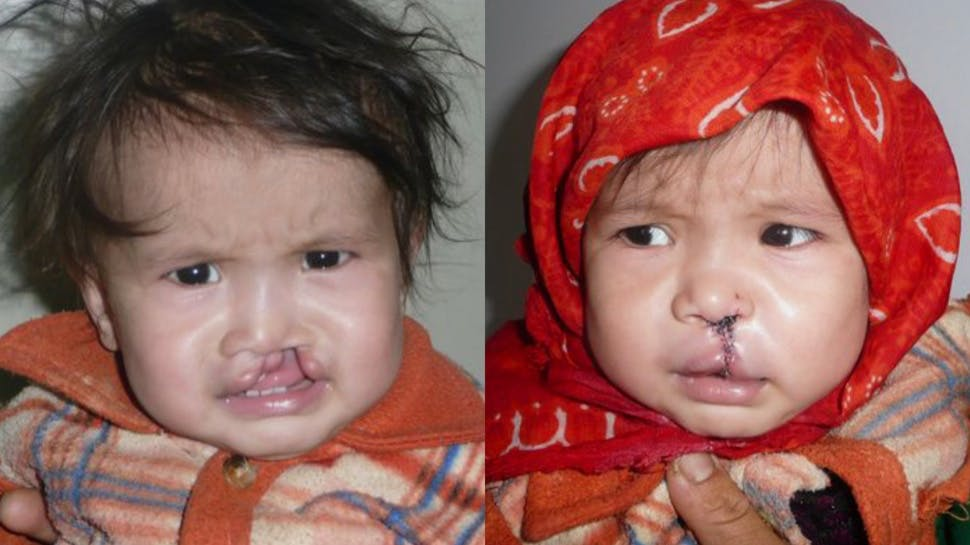 Ashuza Bahati, 11 months, before and after cleft surgery