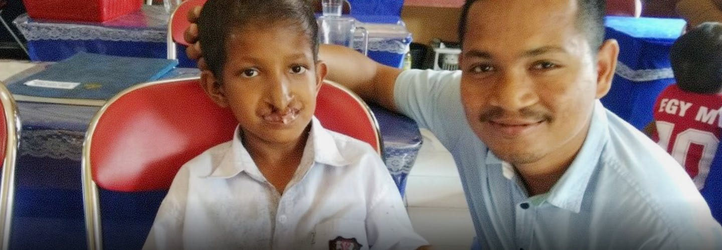 Man and child with cleft lip