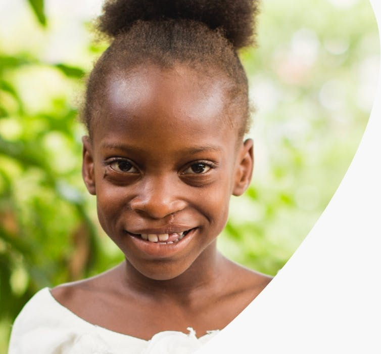 A child post cleft surgery, smiling