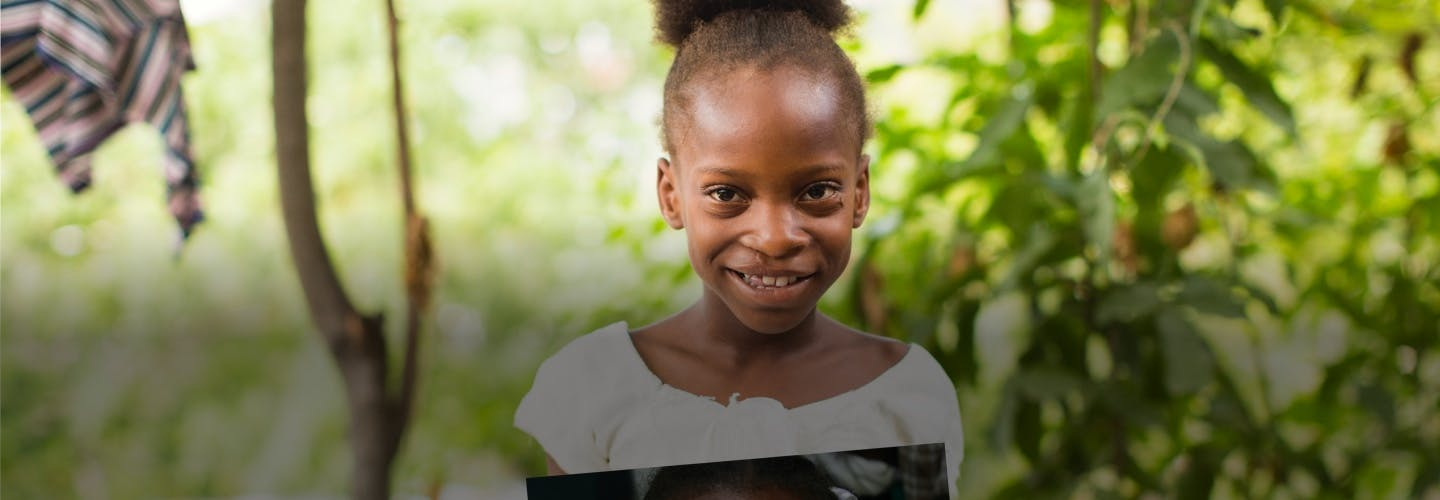 a child smiling post cleft surgery