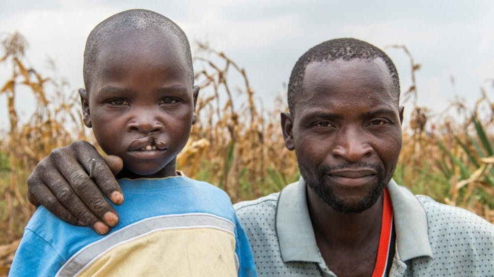 A man and a child with a cleft lip.