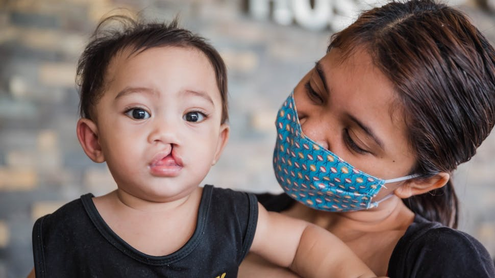 A woman looking at a baby with a cleft lip