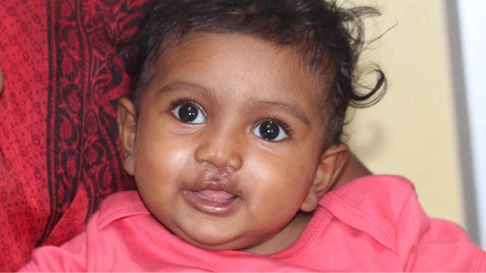 A baby post cleft surgery, smiling