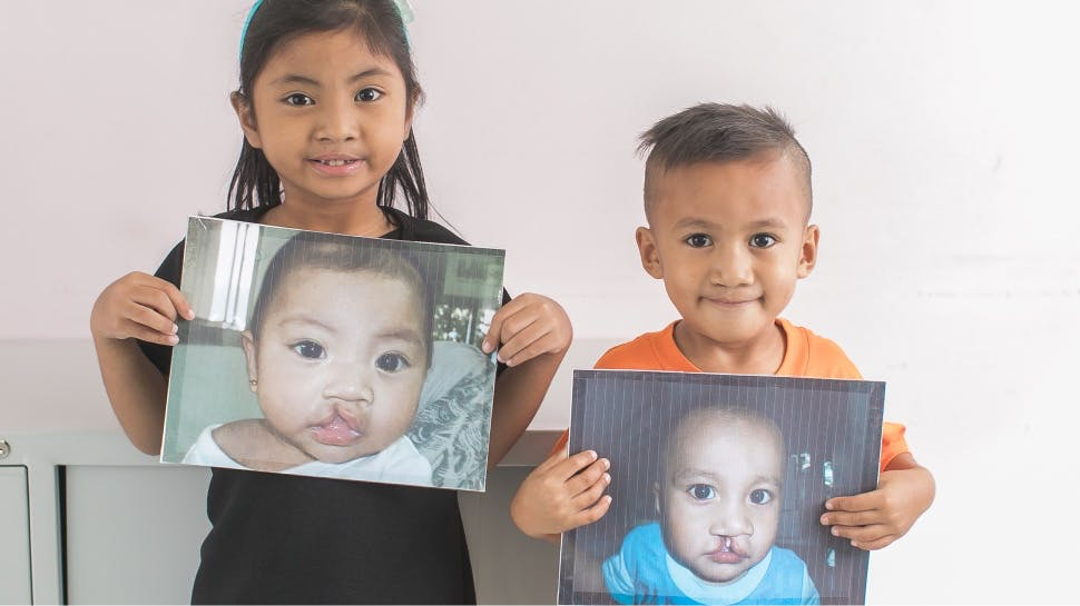 Two children post cleft surgery, holding pictures of themselves as babies