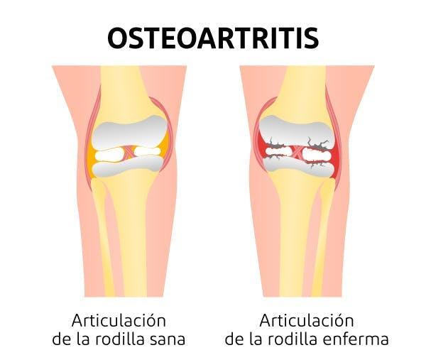 unguent dureri articulare antiinflamatoare