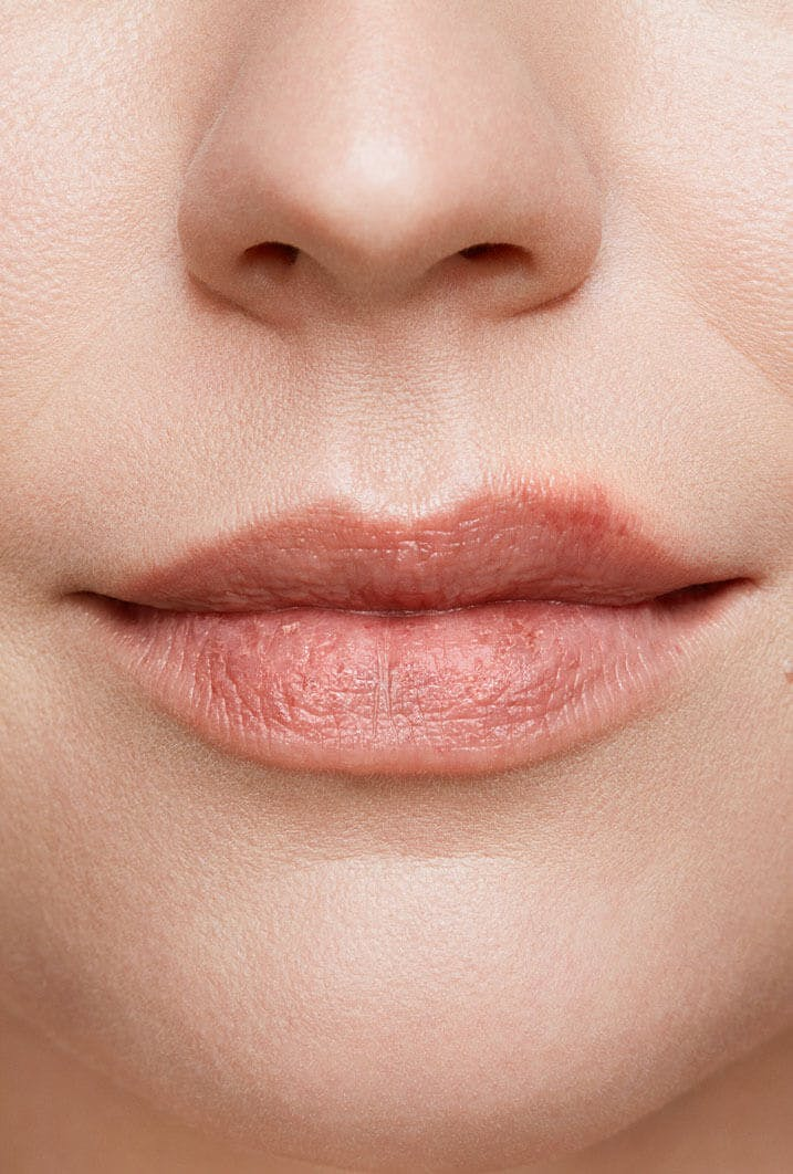 cold sore on woman's lip stage 1 close up tingle stage