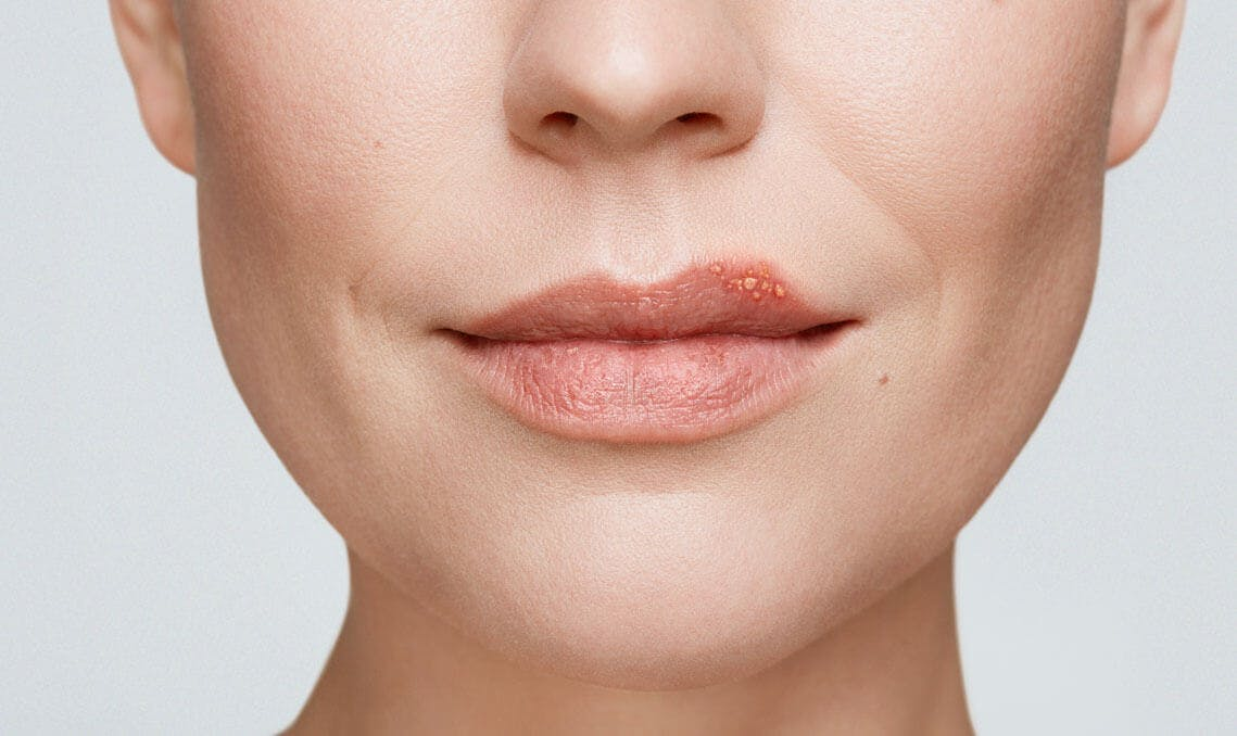 cold sore on woman's lip stage 2 blister stage
