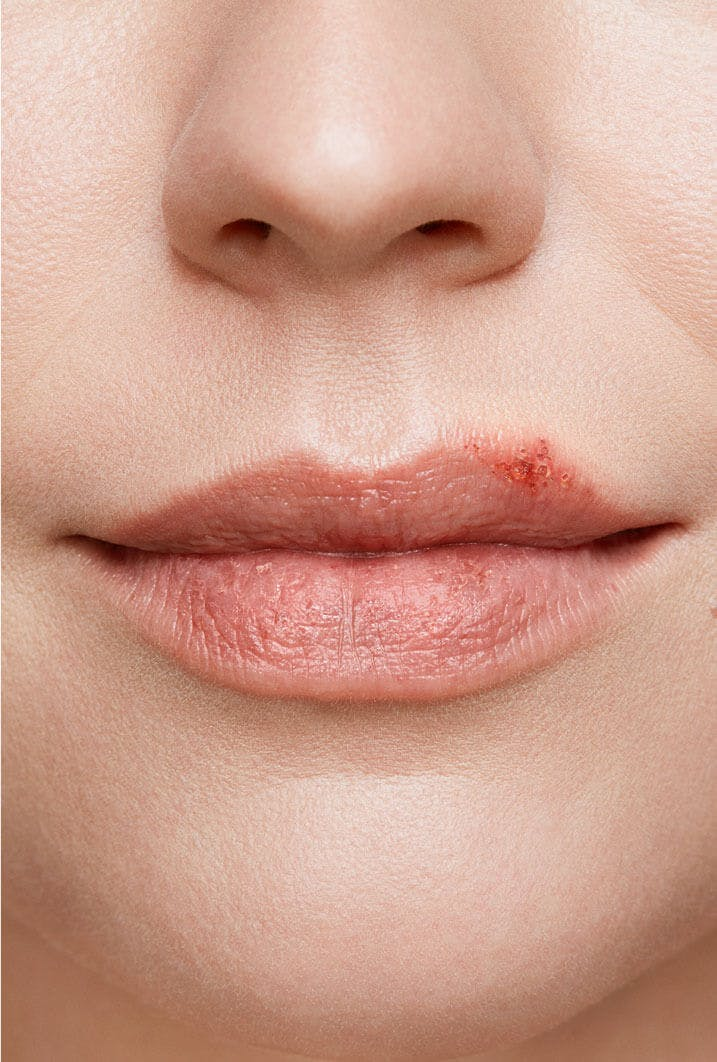 cold sore on woman's lip stage 3 ulcer stage close up