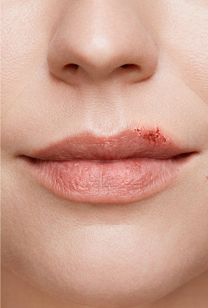 cold sore on woman's lip stage 4 scabbing stage close up
