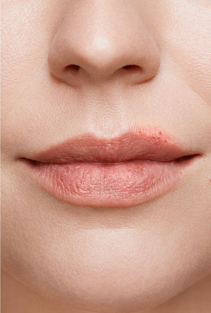 cold sore on woman's lip stage 5 healing stage close up