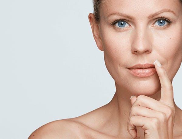woman applying Zovirax cold sore cream