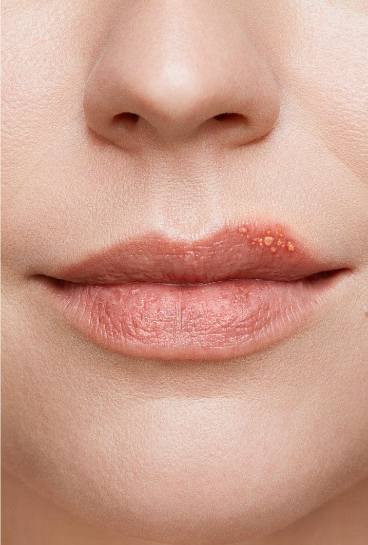 cold sore on woman's lip stage 2 blister stage close up