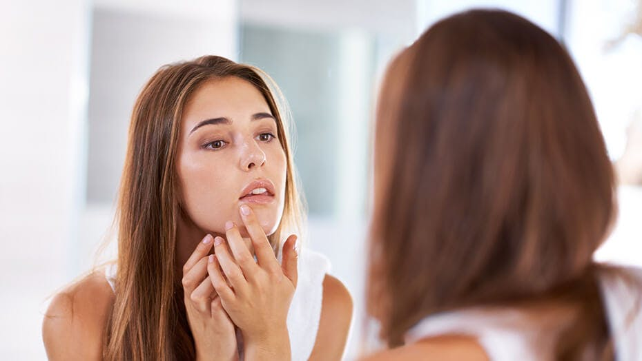 Woman looking at cold sore in the mirror