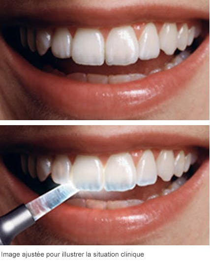 Les effets des attaques acides sur vos dents
